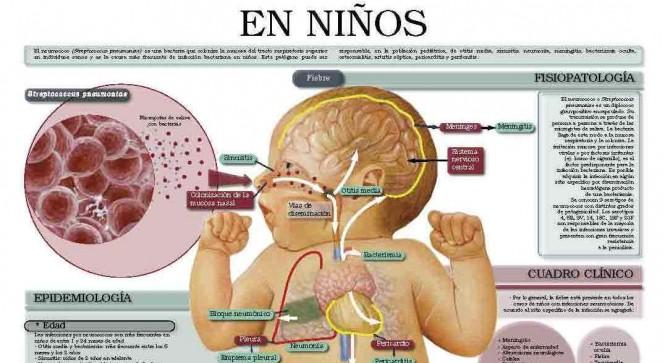 Sería Meningitis bacteriana la causa de muerte del bebé venadense de 11  meses